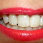 Spôsoby bielenia zubov