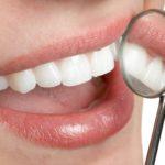 Krásne zuby môžete mať, aj keď nie sú vaše pravé